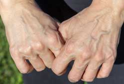 Visible veins on the hands