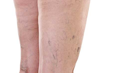 Sclerotherapy for leg with spider veins