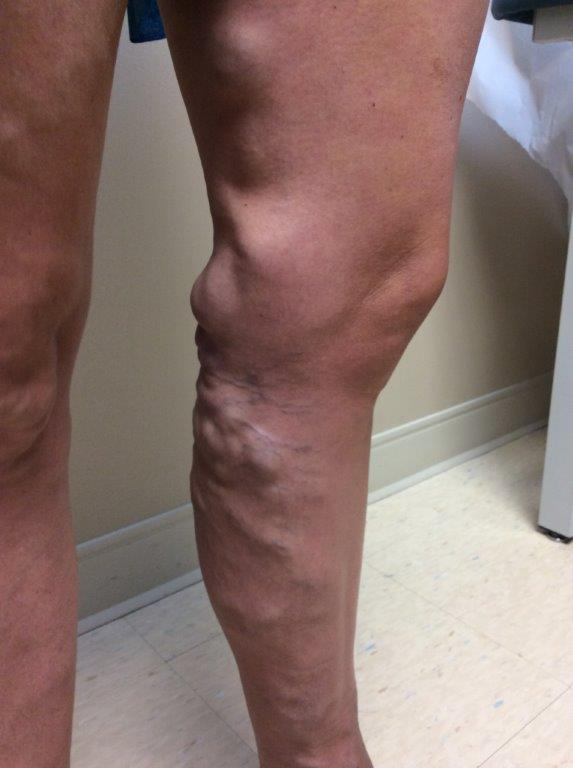 varicose veins in pregnant lady's leg